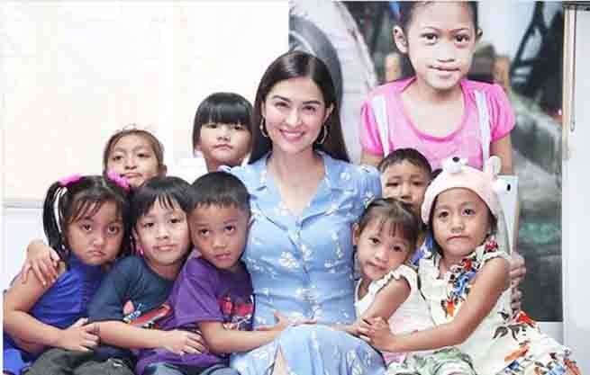 Marian Rivera raises P500K as her birthday treat for children with cleft lip/palate