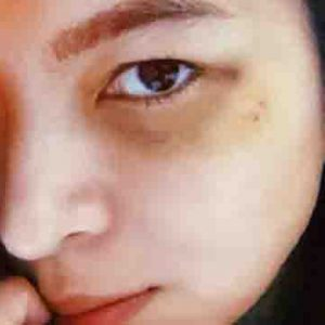 Angel Locsin asks for help about her black eye