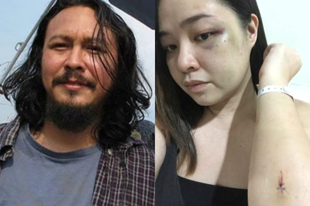 """Baron Geisler accused by alleged ex-girlfriend of physical abuse: """"YOU ALMOST KILLED ME"""""""