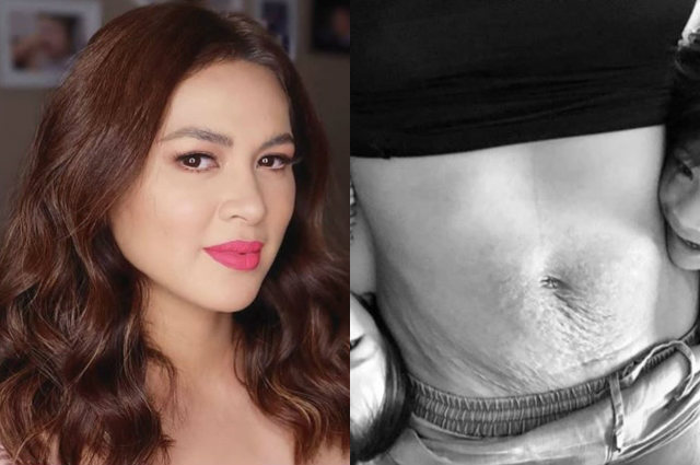 LOOK: Lara Quiagaman flaunts loose skin from motherhood; gives inspiring message to moms