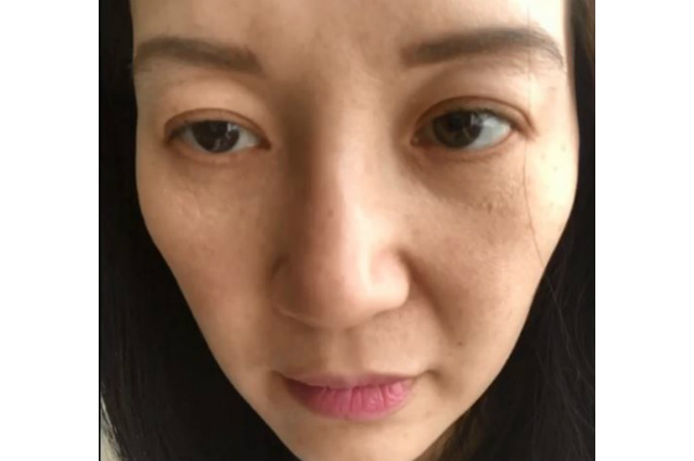 Kris Aquino shows affects of her autoimmune disease to her body