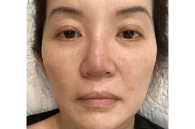 Kris Aquino shows effects of her autoimmune disease anew, expresses concern to sons