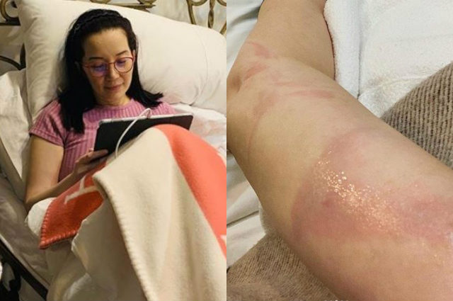 Kris Aquino suffers from bruised legs after accidentally falling from bed