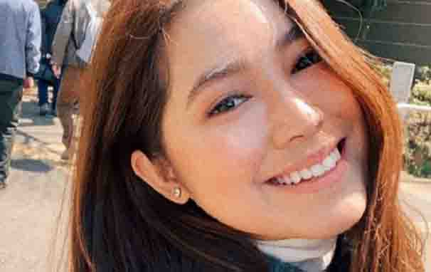 Moira Dela Torre reveals she suffered a nose injury resulting to 'necrosis'